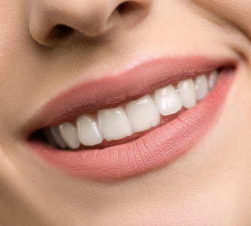 How Diets Affect Your Teeth? 3 Bad Diets