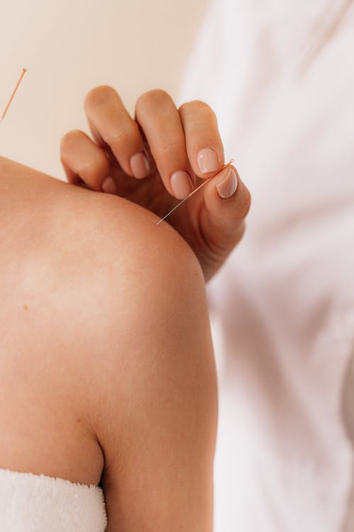 Acupuncture: All Benefits and Harms.What Do You Need To Know?