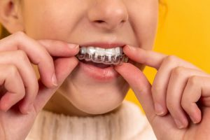 Why Teeth are Loose During a Diet